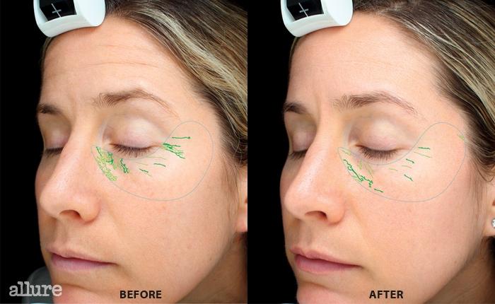 BEFORE육안으로 보이는것보다 더 많은 양의 옅은주름과 진한 주름이 눈가에분포되어 있다. AFTER주름의 길이와 깊이,개수가 45% 향상되었다. 피부에수분이 채워지면서 미세한주름들은 대부분 옅어졌다.