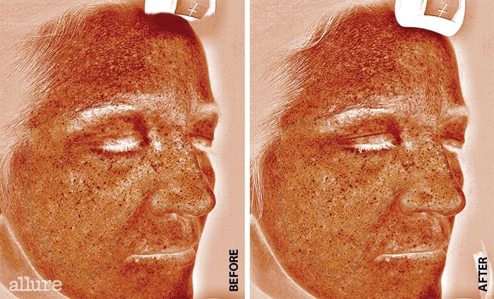 BEFORE 오른쪽 눈썹 위에 뭉쳐있는 짙은 갈색 부분이 검은 반점,즉 멜라즈마다. 잠재된 색소 침착부분이 많이 보인다.AFTER 실험 결과 피부 아래의색소는 19% 감소했다. 갈색반점의 밀도는 6% 낮아졌다.