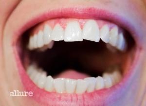 teeth-1652937_1920