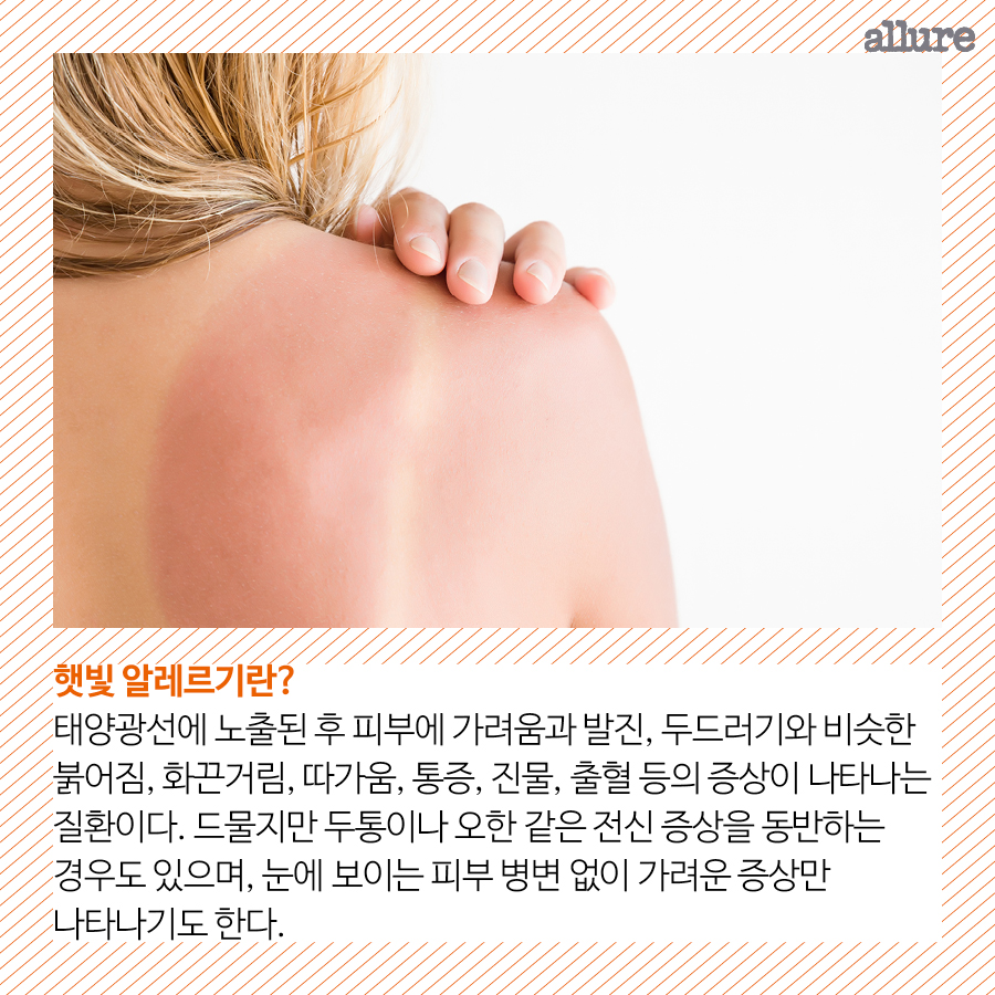 CARD_햇빛주의보1